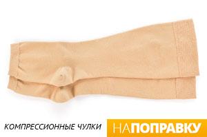 варикозное расширение вен синяки фото