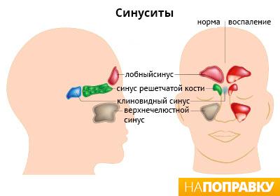 Как лечить ухо если простыла в домашних условиях