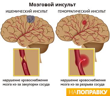 Микроинсульт (транзиторная ишемическая атака