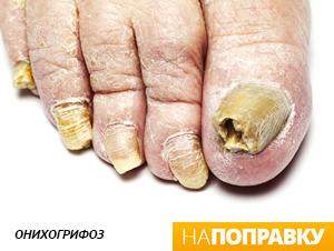 самые длинные в мире ногти на ногах фото