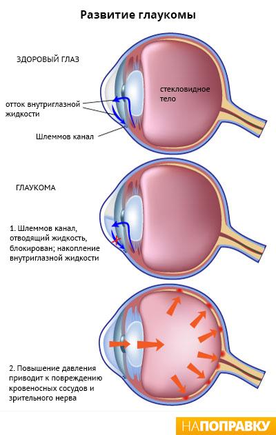 схема развития глаукомы