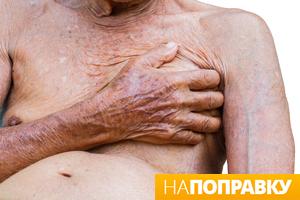 Хроническая сердечная недостаточность.jpg