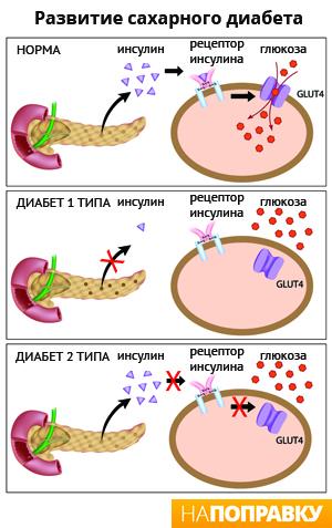 Гестационный диабет: симптомы, лечение, диета – НаПоправку