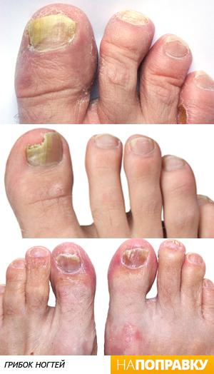 Антибиотик для лечения грибка ногтей на ногах