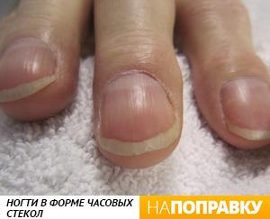 Изменился цвет ногтей на руках