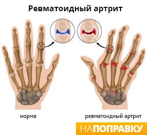 искривление пальцев рук при ревматоидном артрите
