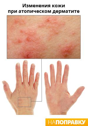 Атопический дерматит или нейродермит - причины симптомы и препараты для лечения