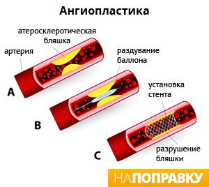 Способы ангиопластики при инфаркте