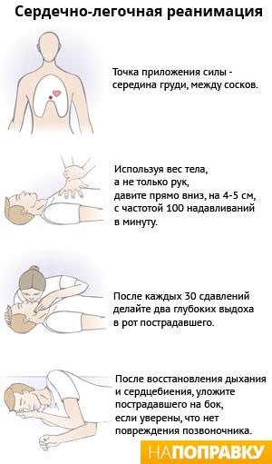 Инфаркт миокарда: признаки, симптомы, лечение, реабилитация ...