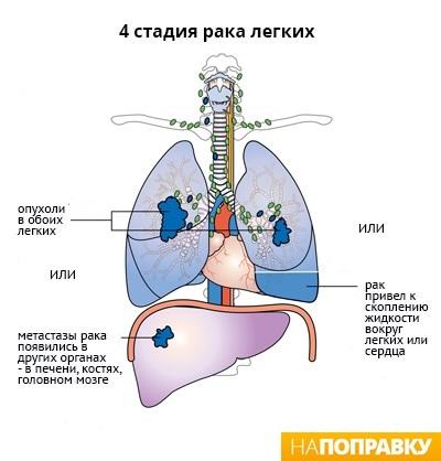 Когда при раке легкого выдается больничный лист Справка от педиатра Щербинский проезд (город Щербинка)