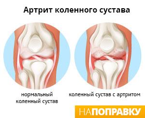 сравнение здорового колена и колена с артритом