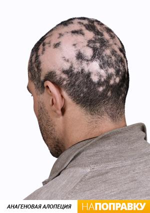 Выпадают волосы от рака