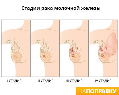 Стоимость операции по увеличению бюста украина