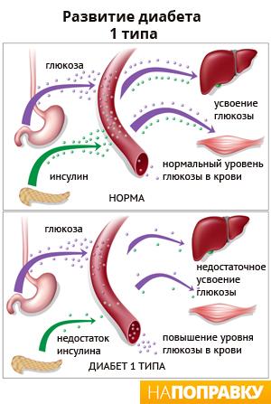 Секс и сахарный диабет 1 типа