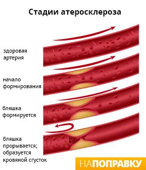 группы статинов снижают фракции липопротеидов