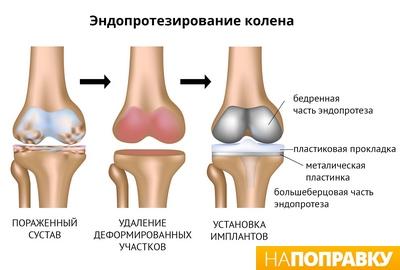 Эндопротезирование колена(операция)_готовое.jpg