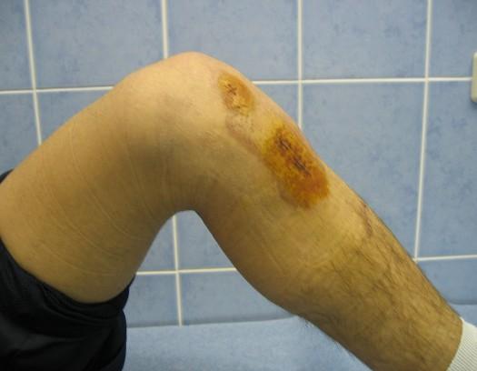 операция при разрыве связок коленного сустава