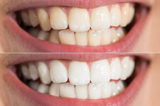 отбеливание зубов beyond